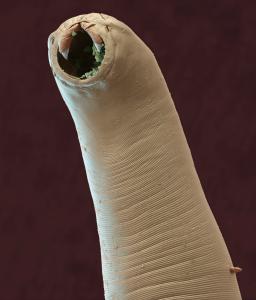 Hakenwürmer nutzen ihre zahnähnlichen Mundwerkzeuge, um sich in der Darmwand ihres Wirtes zu verbeissen (200-fache Vergrösserung). Foto: Sciencephoto